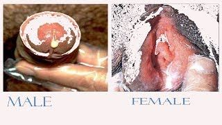 home treatments for gonorrhea in men and women how to get rid of