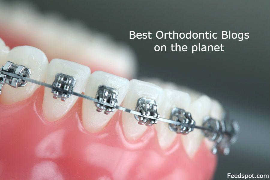 Blogs braces follow orthodontic top websites top 100