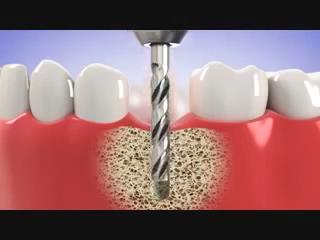 Dental implant #dentalfacts