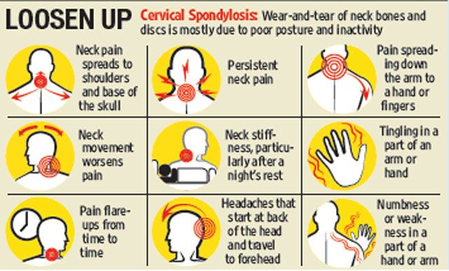 Pin By Mehedi Hasan On Medical Cervical Spondylosis