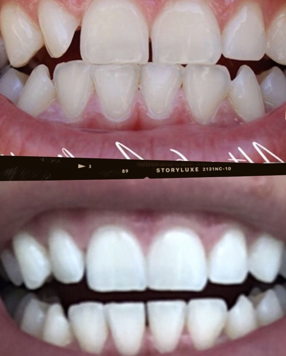 Invisible teeth aligners pros and cons of straightening