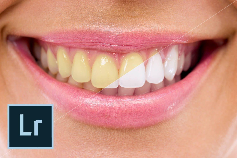 Novo Lightroom Facilita Deixar Os Dentes Mais Brancos Clarear