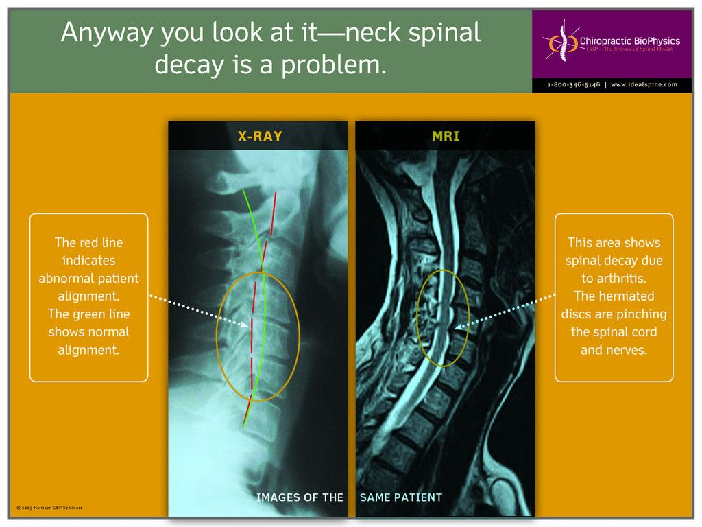 Neck Spinal Decay | GoodHealth Posters | Disk herniation