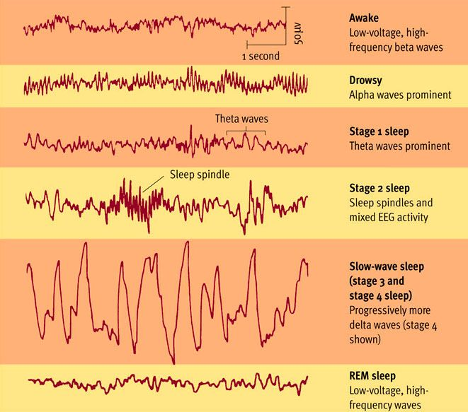This Picture Shows The Different Brain Waves Of The Stages