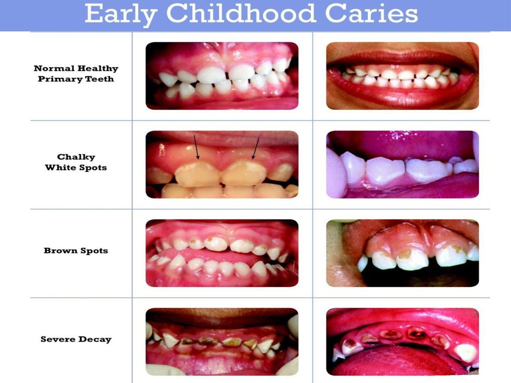Caries in children: causes, types, stages and treatment of caries of primary teeth. Prevention of caries in young children 6