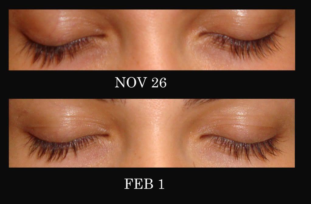 Castor Oil Eyebrows Before And After Castor Oil Eyebrows Eyebrow Before And After Castor Oil