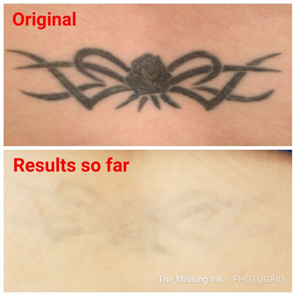 invisible ink tattoo removers reviews
