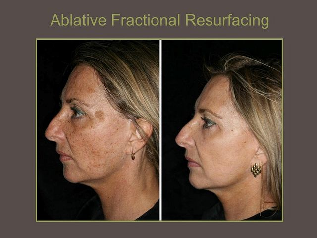 Ablative Fractional Resurfacing By Drbiesmaninfo Via Flickr Laser Skin Resurfacing Skin Resurfacing Skin Resurfacing Treatment