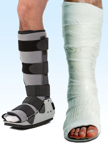 dff477db54 Picture 3 shows the type of casts used to treat Achilles tendon injury.
