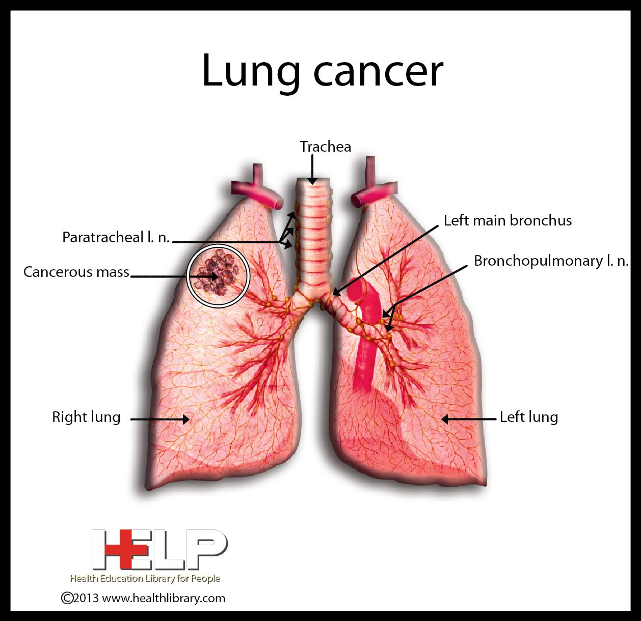 Lung Cancer | Oncology | Pinterest | Lung cancer and Lungs