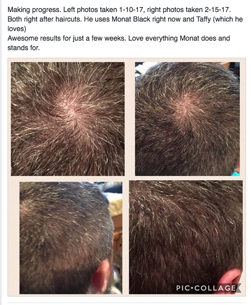 Men Are Ditching Their Chemical Filled Nioxin And Rogaine For A Safer Natural Product Monat Is Clinically Proven To Regrow Healthy Hair