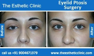Ptosis Of The Eyelid Surgery Cost – Anexa Beauty