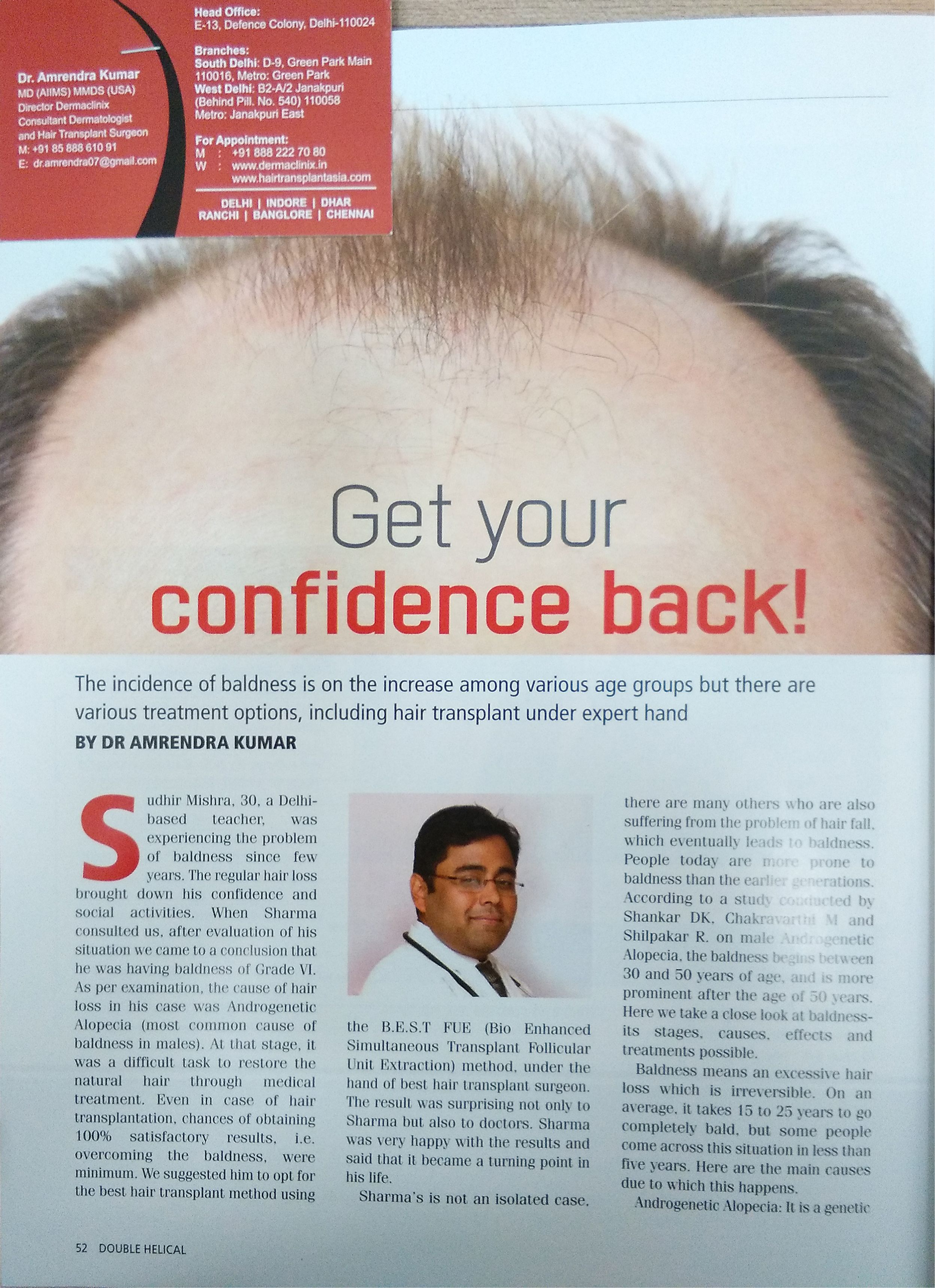 Are You Looking For The Best Hair Transplant Clinic In Bhubaneswar Aesthetica Clinics Is One Of The Best In 2020 Hair Transplant Best Hair Transplant Cool Hairstyles