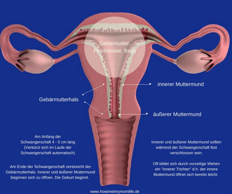 Innerer Muttermund