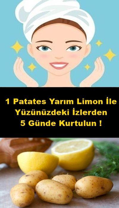 1 Patates Yarım Limon İle Yüzünüzdeki İzlerden 5 Günde Kurtulun #ciltbakımı