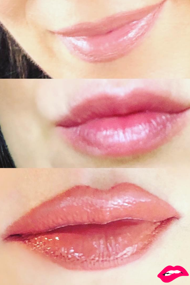 Absolutely Stunning Customer Before After Check Out That Plump