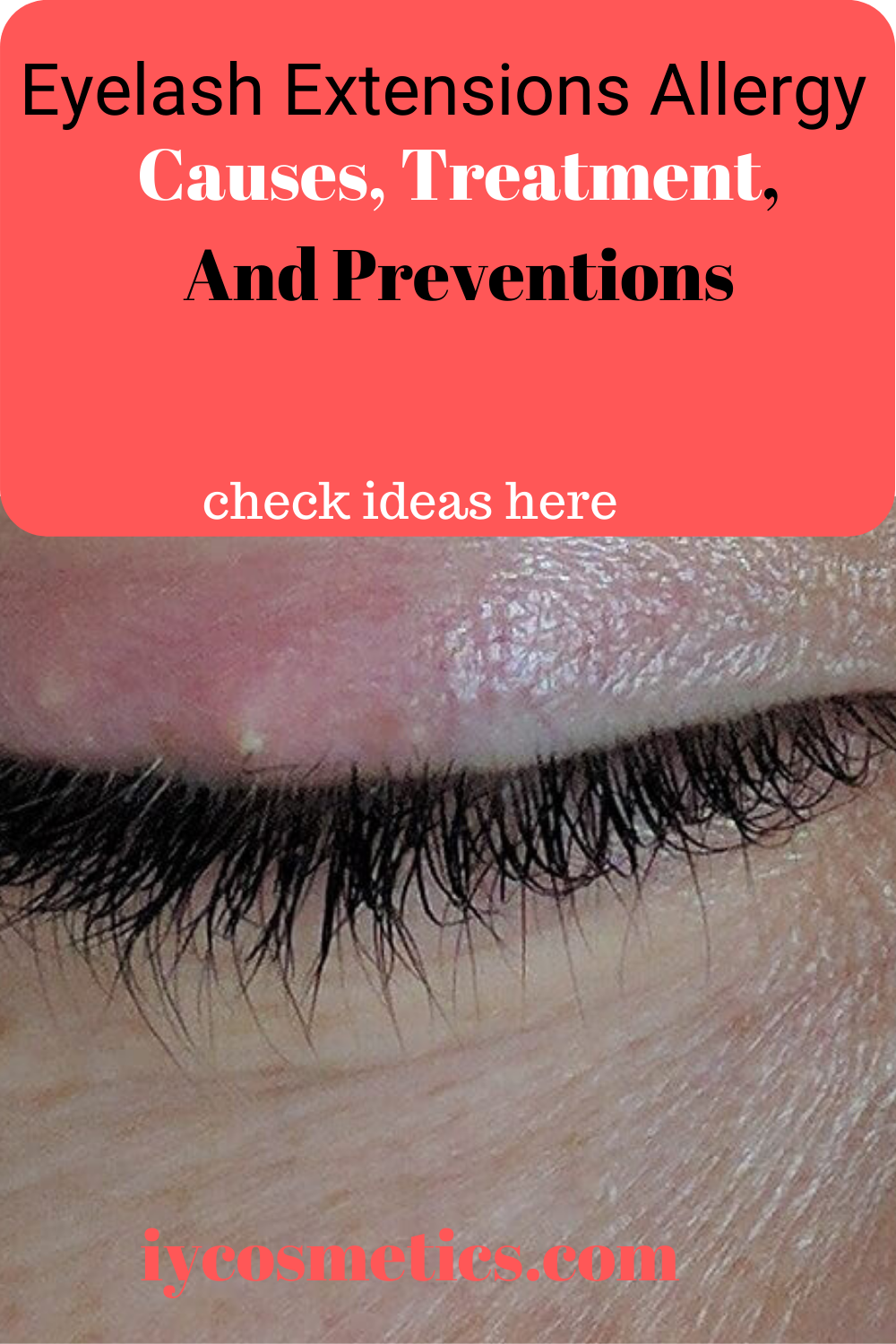 Eyelash Extensions Allergic Reactions Causes Symptoms Treatments And Preventions In 2020 Eyelash Extensions Allergic Reaction Treatment Eyelashes