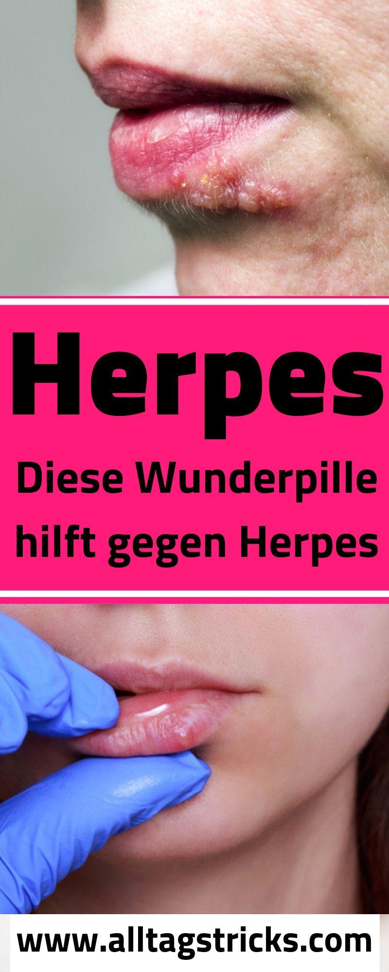 lysin gegen herpes