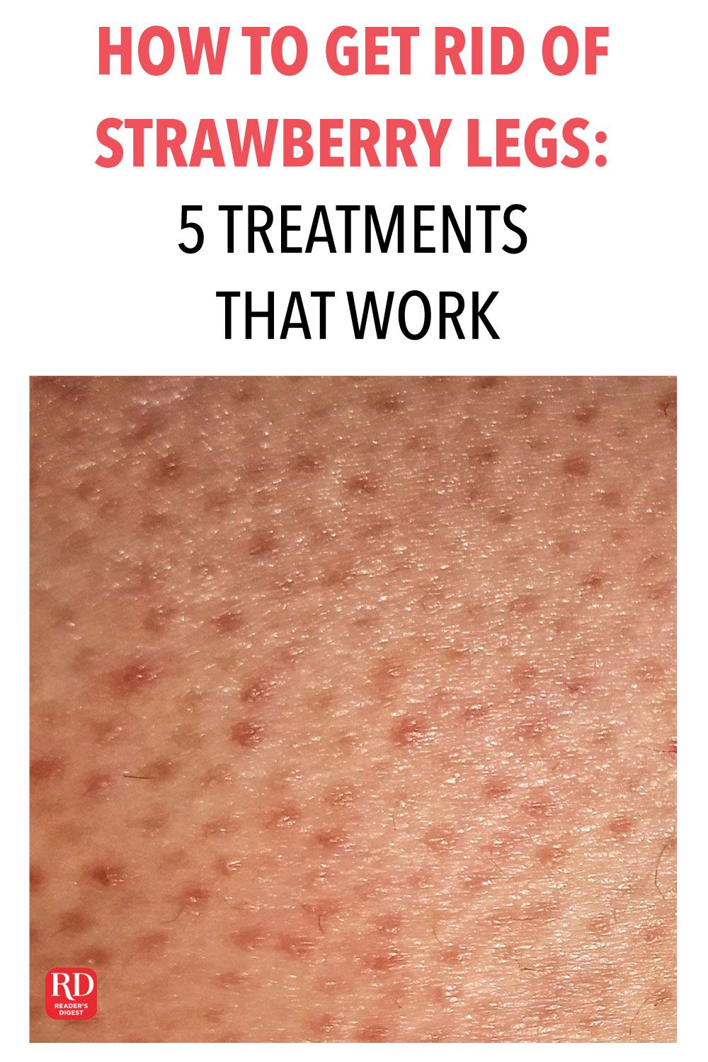 d79bc97993e2c934bc32ecd5fc0140eb - How To Get Rid Of Strawberry Spots On Legs