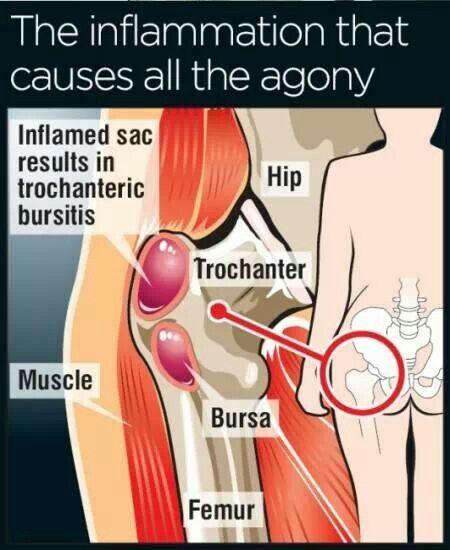 Inflammed hip | Anatomy | Pinterest | Anatomía, Acupuntura y ...