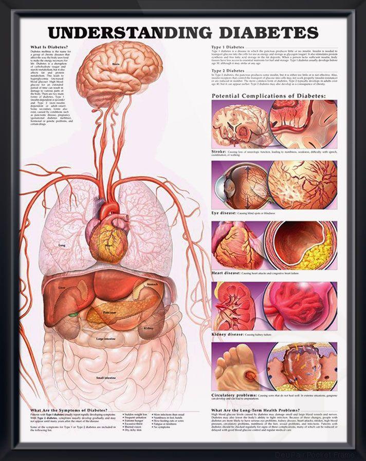 Understanding Diabetes anatomy poster defines diabetes in general ...