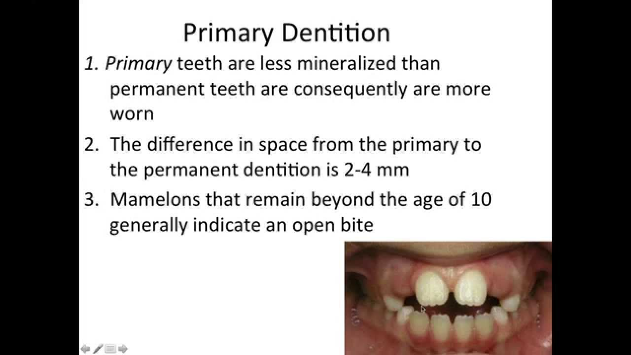 300 Dental Anatomy Facts Part 1 Primarydeciduous Dentition Nbde