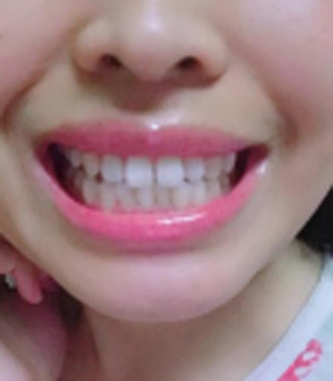 Tip Bottokan Tooth Whitening Powder Tips Memutihkan Gigi Dengan