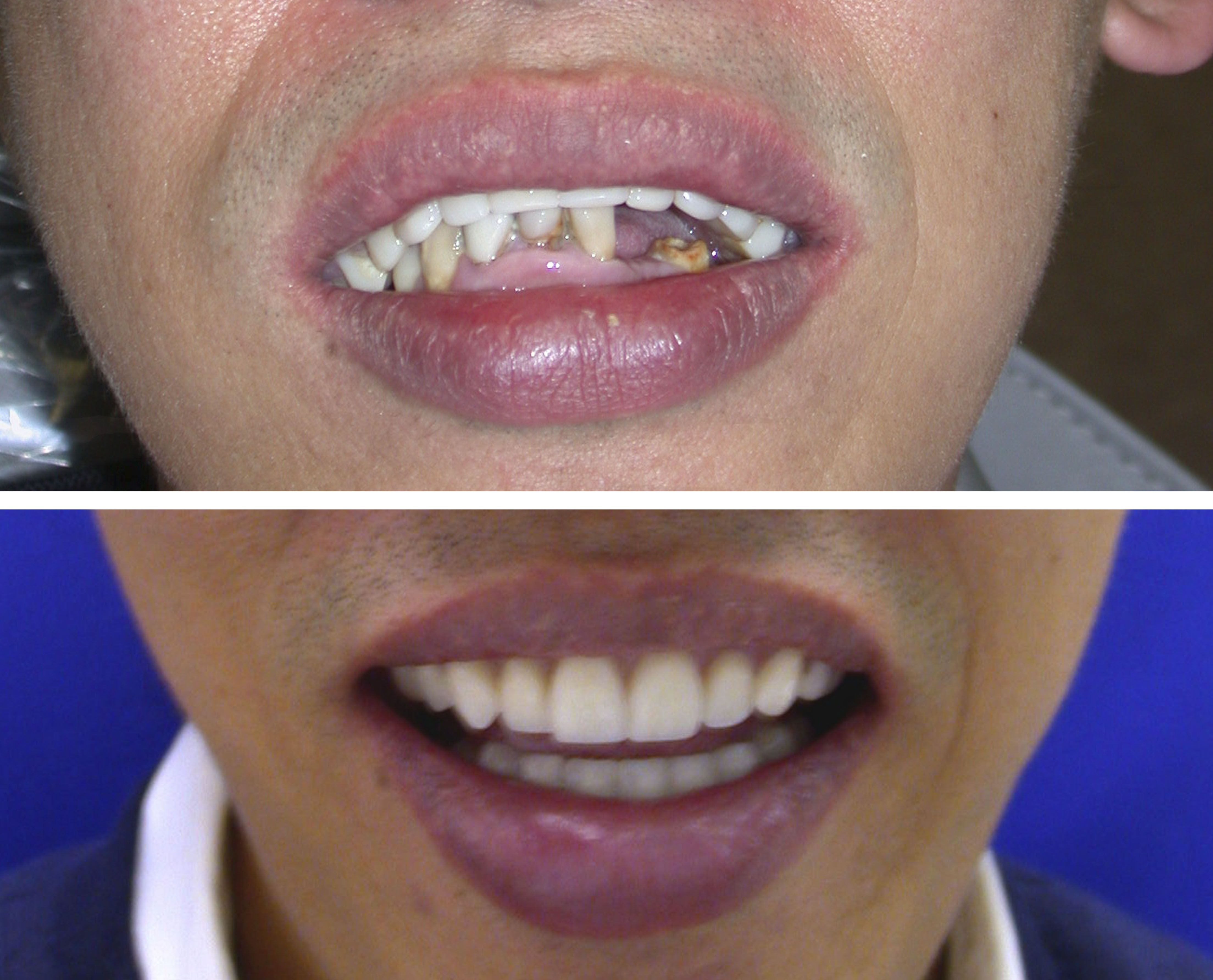 Before and after patient wore a poorlyconstructed