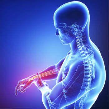 A Síndrome de Guillain-Barré é uma doença autoimune que ocorre quando o sistema imunológico do corpo ataca parte do próprio sistema nervoso por engano. Isso leva à inflamação dos nervos, que provoca fraqueza muscular. Saiba mais: