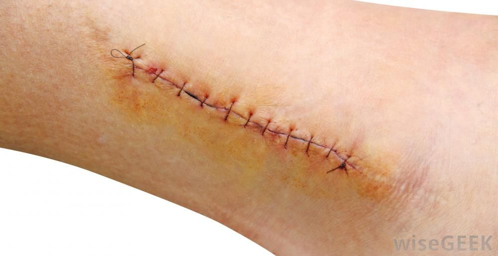 What Are Suture Kits? (with pictures) | Halloween Potential ...
