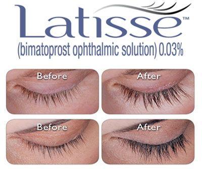 Latisse Latisse Latisse Eyelashes Eyelash Treatment