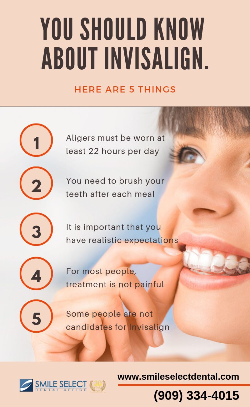 You Should Know These Things About Invisalign Invisalign Services