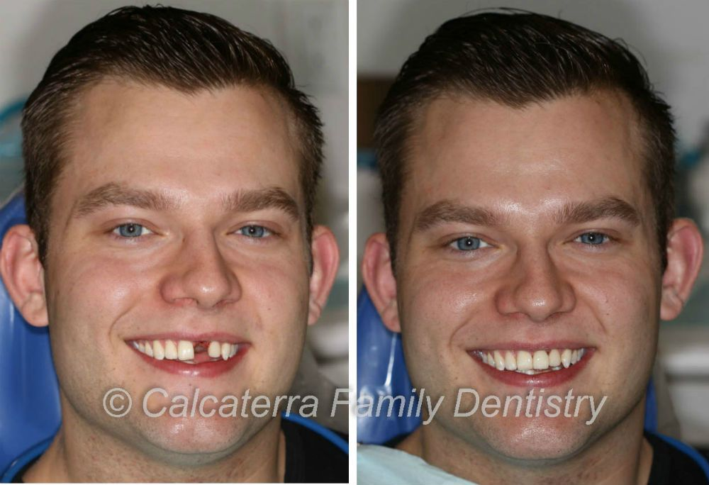 Dental Implants allowed Tom to smile again as seen in these photos from our Orange, CT dental office.