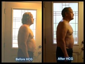 """""""I have noticed that I can get up and down the stairs in my house with ease…..Whereas before, I, had to go down them a half a stair at time…..Man what a fantastic difference #HCG has made in my life!"""" - Bill S."""