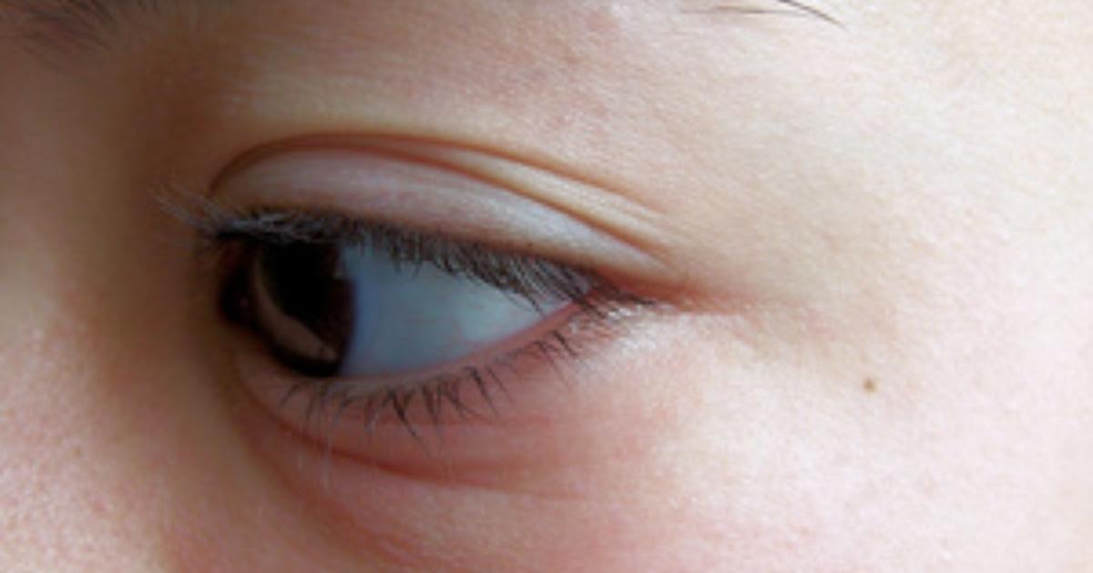 mira como eliminar los ojos inflamados con estos remedios naturales