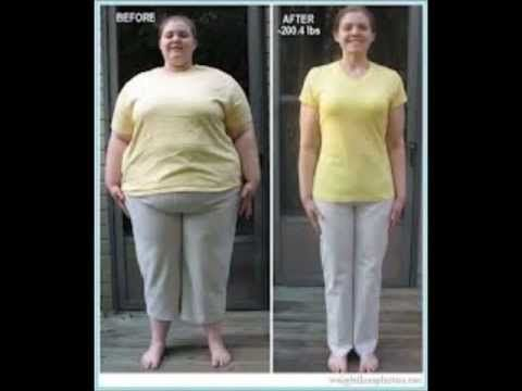 Garcinia Cambogia Before And After Garcinia Cambogia Side Effects