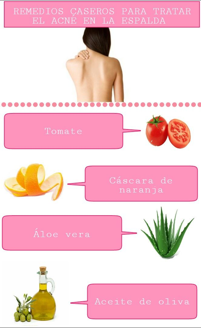 Consejos Para Chicas Remedios Caseros Para Tratar El Acné En La Espalda Acné En La Espalda Remedios Para El Acne Como Tratar El Acne