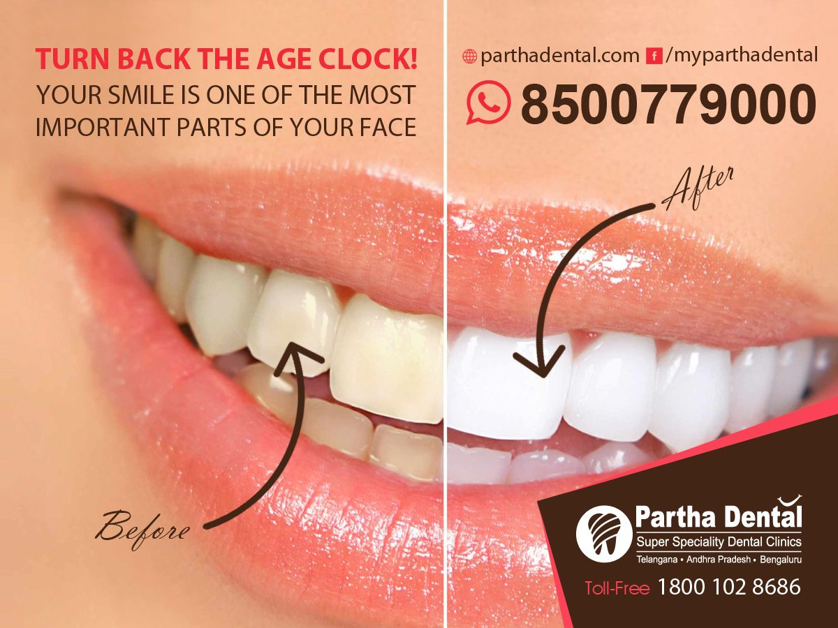 Turn Back The Age Clock! your smile is one of the most