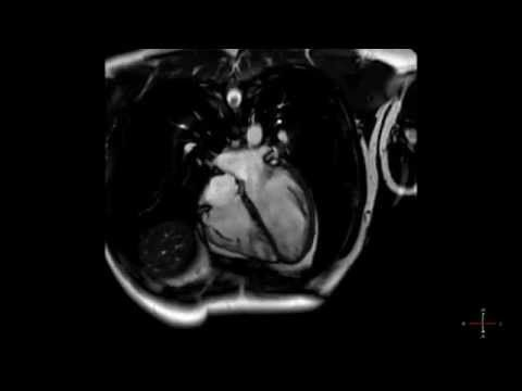 cardiac mri scan - heart beat in real time hd - youtube | heart, Powerpoint templates