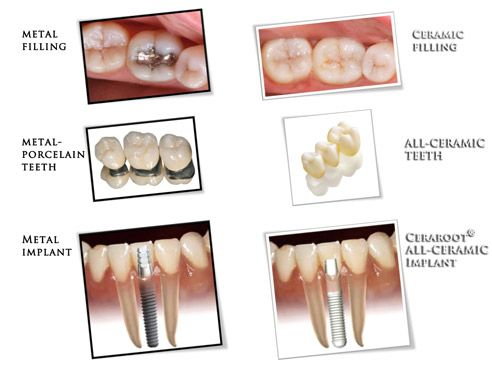 100 Ceramic Dental Implants Dental Ceramics