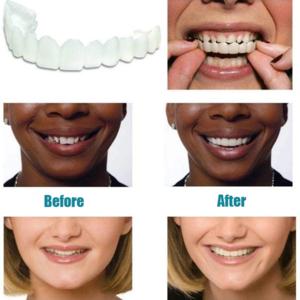 Silica Gel Flexible Magic Teeth Brace Hot Sale Only 19 Left Idesignd In 2020 Cosmetic Teeth Teeth Braces Perfect Smile