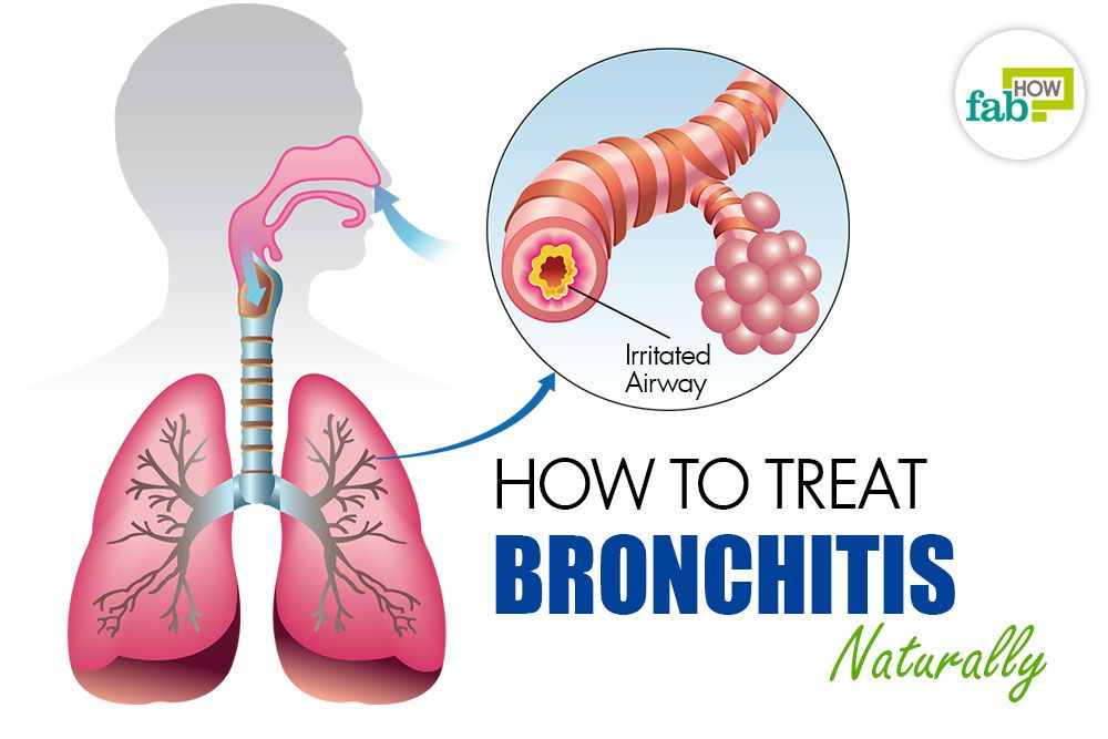If you've recently had a severe cold that turned into a nagging cough, you might be suffering from bronchitis.    Bronchitis is a condition of inflammation, infection or swelling in the bronchial tubes, which carry oxygen from