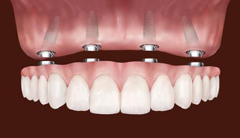 All on four dental implants. Ask for a complimentary