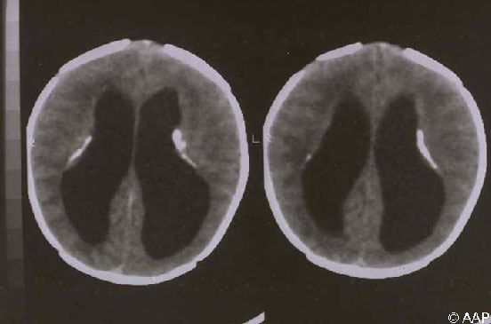 Toxoplasma gondii Infections (Toxoplasmosis). A 3-day-old boy presented with