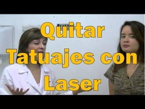 Cómo Quitar Un Tatuaje Usando La última Tecnologia Laser Qué