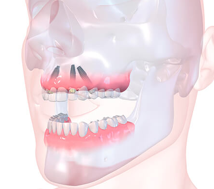 all on 4 cost Dental implants cost