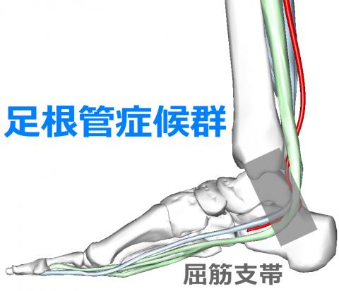 足 の 小指 痺れ