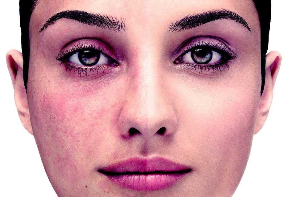 Pin on TIPS for perfect skin