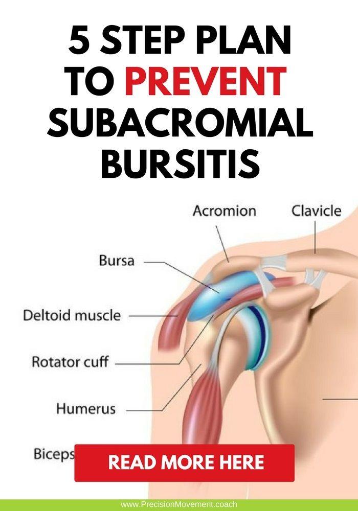 5 Step Plan To Treat And Prevent Subacromial Bursitis Chronic