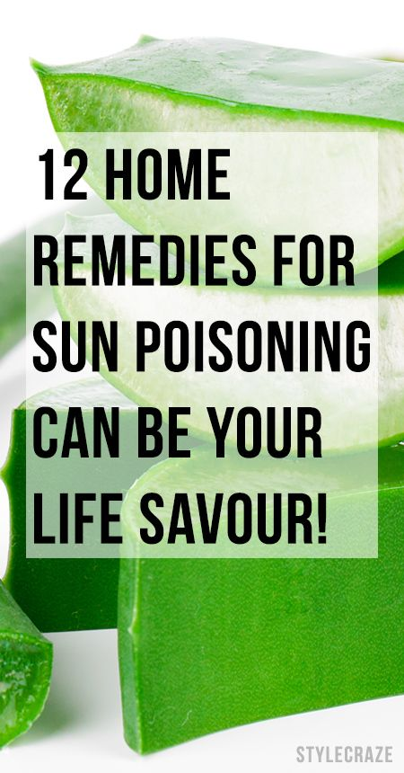 10 Natural Remedies To Treat Sun Poisoning At Home